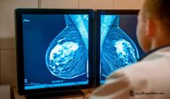Ciencia-argentina-crean-un-mamógrafo